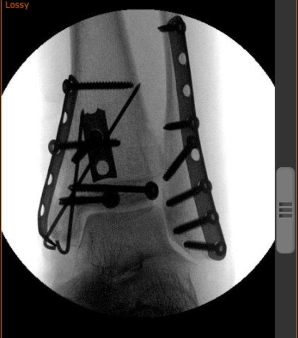 K's left ankle x-ray, webshare