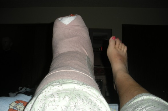 Post-surgery, ankle cast and normal right foot 4x6