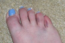 DSCN2529  Bruised toes, and this is my GOOD foot!